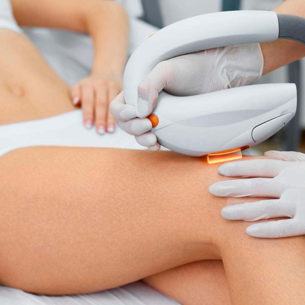 IPL Fotodepilación en Terrassa. Mujer aplicándose tratamiento en las piernas. Centro de estética y belleza en Terrassa