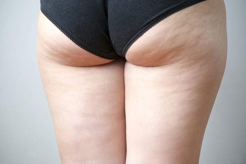 Cómo combatir la celulitis. Detalle de las piernas de una mujer. Centro de estética y belleza en Terrassa